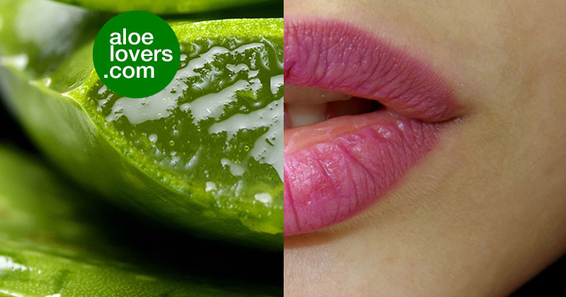 Aloe Vera per l'herpes labiale e altri rimedi naturali